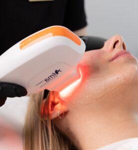 laserowe odmładzanie skóry